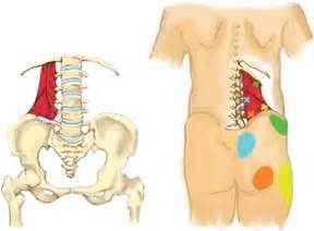 muscle tightening in right side of back picture 13
