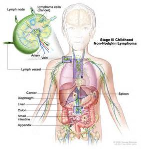treatment for colon cancer if spread to one lymph node picture 7
