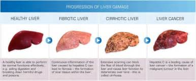 first sign of liver disease picture 14