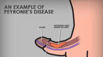 peyronie disease pictures picture 6