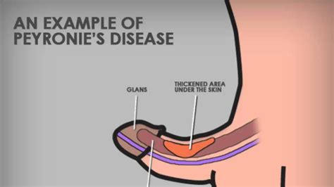 peyronie disease pictures picture 3