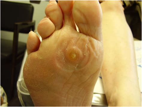 callus or wart picture 7