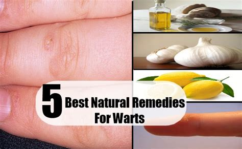 homeopathic remedies warts picture 2