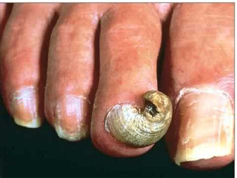 stop fingernails growing picture 18