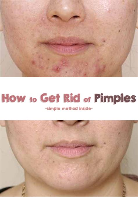 how to get rid of zits and acne picture 3