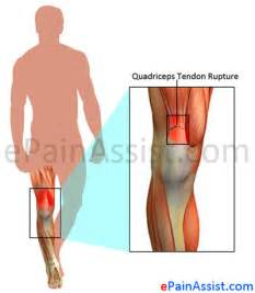 no appe e weight loss swollen foot are symptoms of picture 4