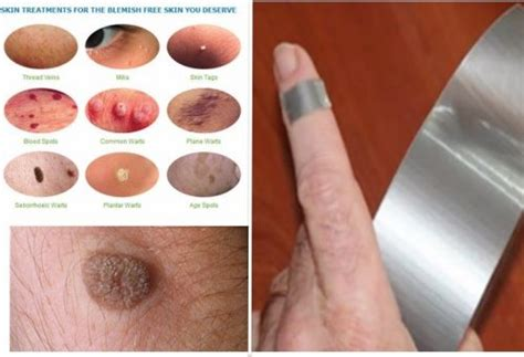 what medicine can be taken internally for warts picture 10