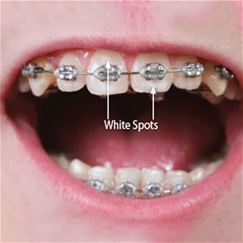 plano teeth whitening picture 5