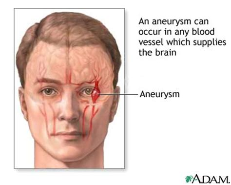 causes of blood clot in brain picture 3