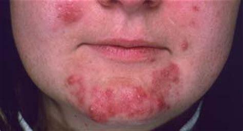 perimenopause cystic acne picture 3