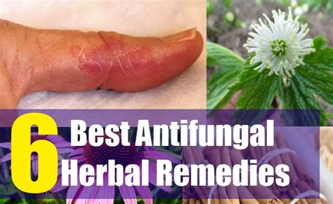 fungal herbal supplement picture 5
