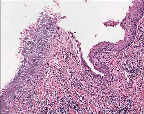 cause of yeast in esophagus picture 3