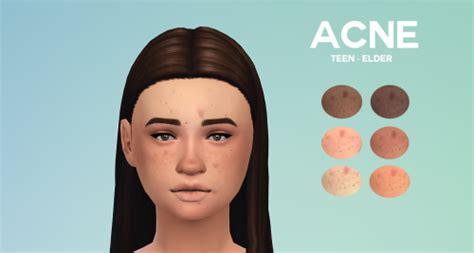 sims 3 acne skin picture 2