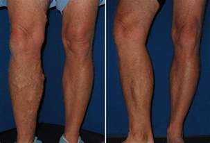 thigh chafing swollen treatment picture 5