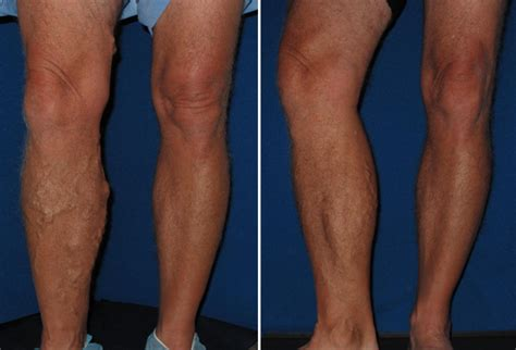 thigh chafing swollen treatment picture 6