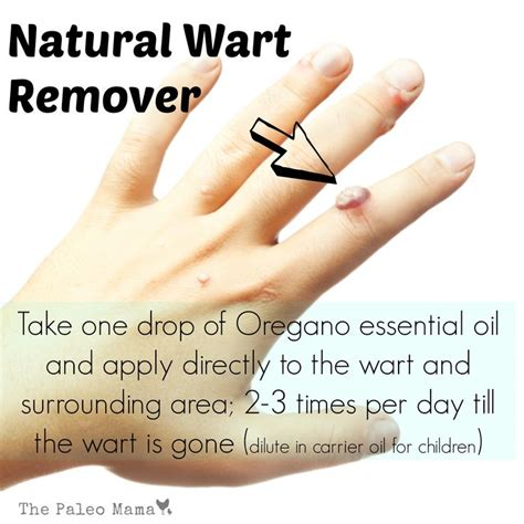 holistic wart removal picture 9