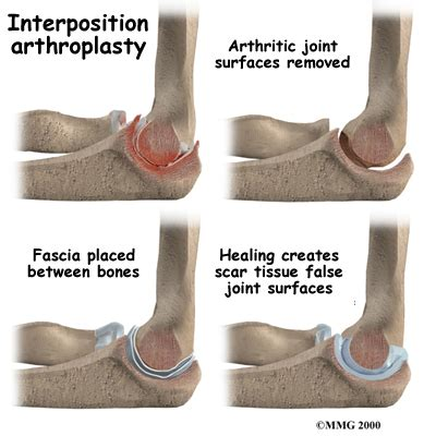 bursitis in many joints picture 14