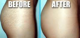surgical stretch mark removal picture 11