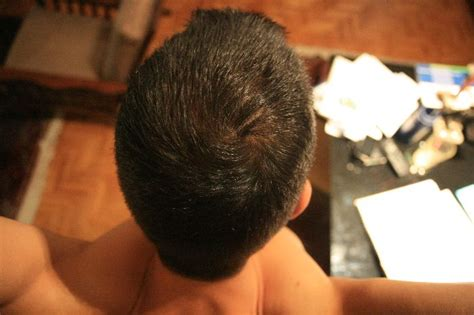 a good dose for hair loss avodart picture 1