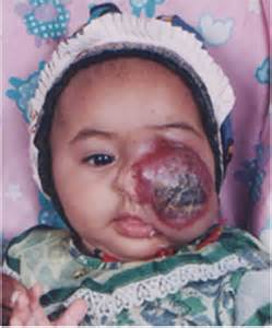 children liver hemangioma picture 13