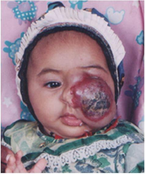 children liver hemangioma picture 3