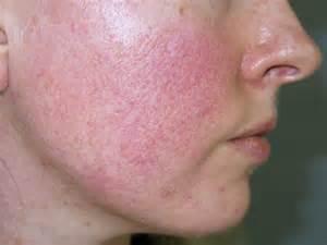 acne rosacea phymatous picture 1