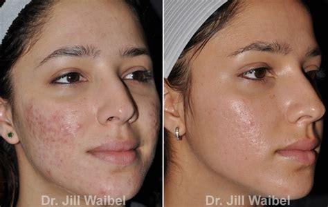 acne and vinegar picture 2