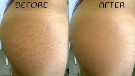 laser treatment of white stretch marks picture 3