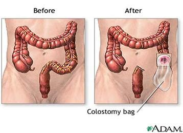 Colon cancer treatment when tumor has been removed picture 4