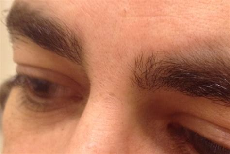 eyebrow hair removal picture 9
