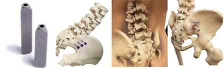 sacroiliac joint supplements picture 3