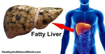 symptoms of a fatty liver picture 6