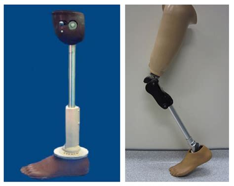 cost of knee joint replacement picture 17