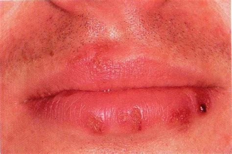 herpes type 2 oral lesion picture 1
