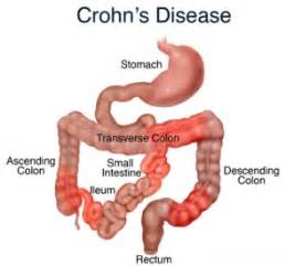 symptoms of inflammation of the colon picture 14