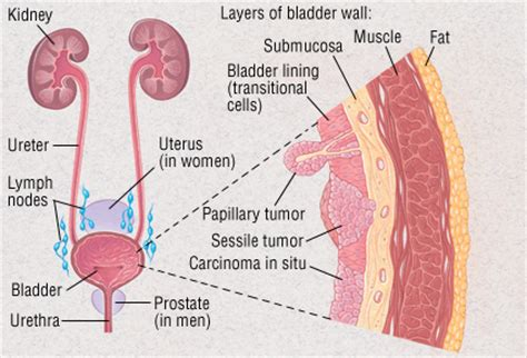 treatment of urinary bladder cancer picture 6