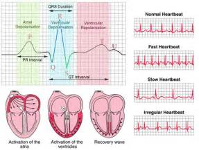 abnormal ekg and high blood pressure picture 6