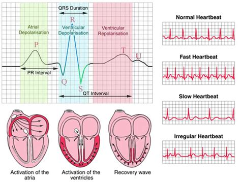 abnormal ekg dizziness high blood pressure picture 10