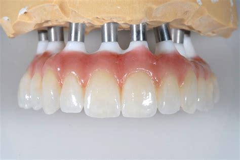 dentist porcelain teeth picture 15