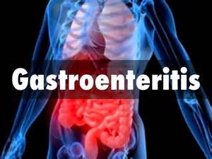 probiotics after hemicolectomy picture 6