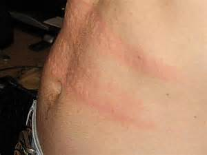 central nervous system strain skin rash picture 6