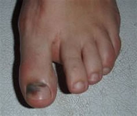 home remedy for toe nail fungus picture 11
