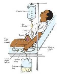 bladder wash picture 3
