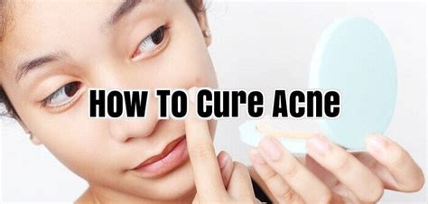how to treat acne picture 5