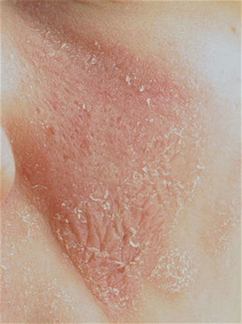 healing dry scaling feet herpes picture 5