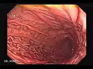 the inside of a stomach v ore picture 3