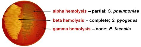 what test are used for bacterial infections picture 11