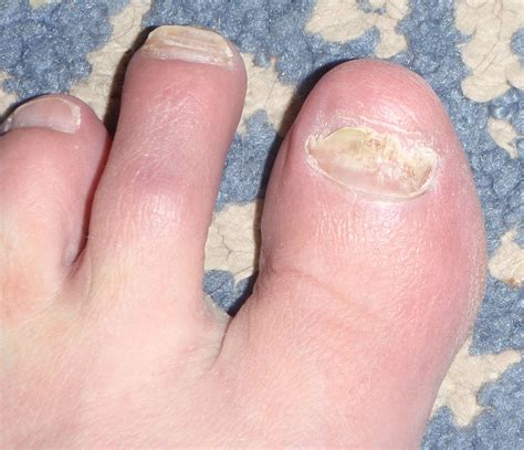 can toe nail fungus goaway picture 10