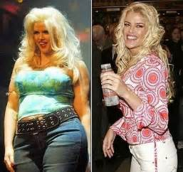 how anna nicole loss weight picture 1