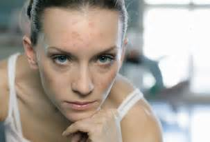 acne in women picture 1